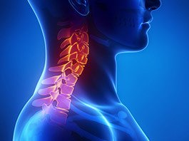 Cervical Disc Herniation Treatment