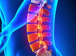 Lumbar Laminectomy Surgery