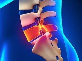 Lumbar Strain/Sprain