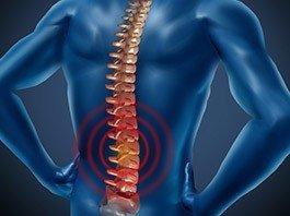 Spondylolysis/Pars Fracture