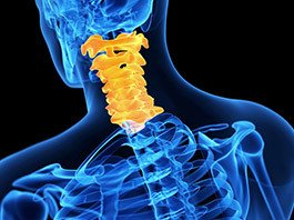 Cervical Laminectomy and Fusion