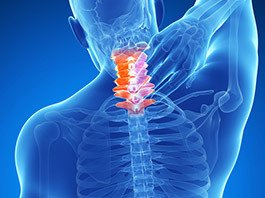 Cervical (Neck) Strain/Sprain